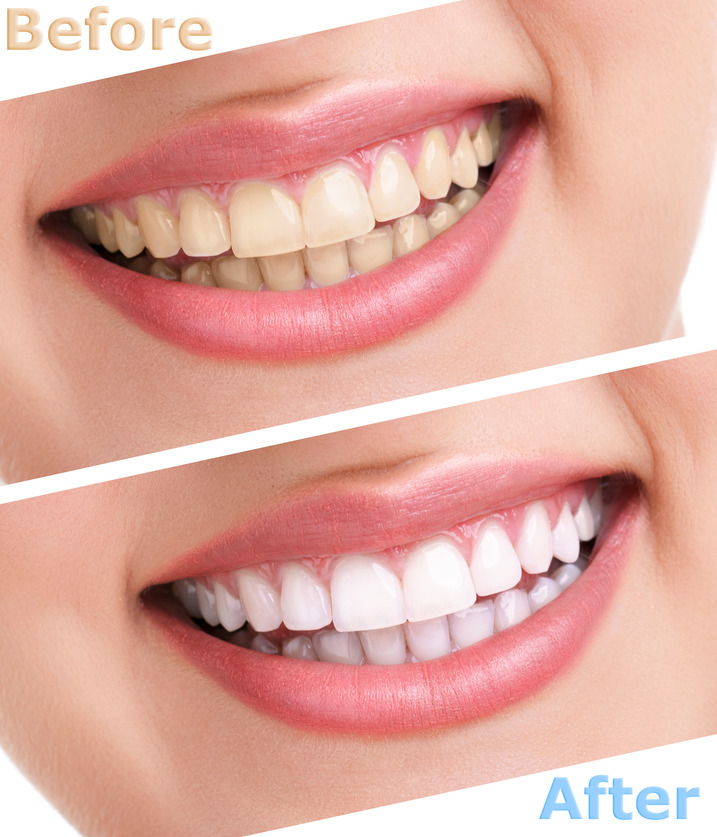 teeth whitening clinic in des plaines | best dental care in des plaines